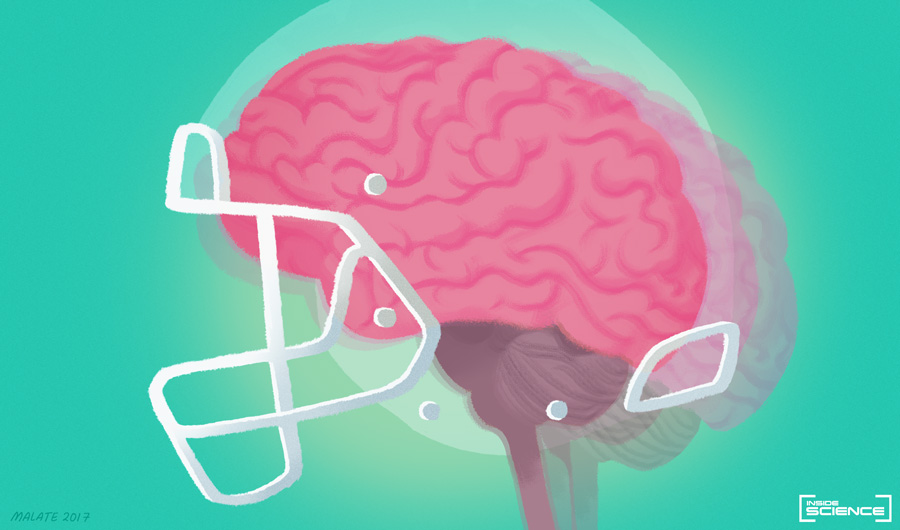 Concussions and Traumatic Brain Injuries in Football: What We Know